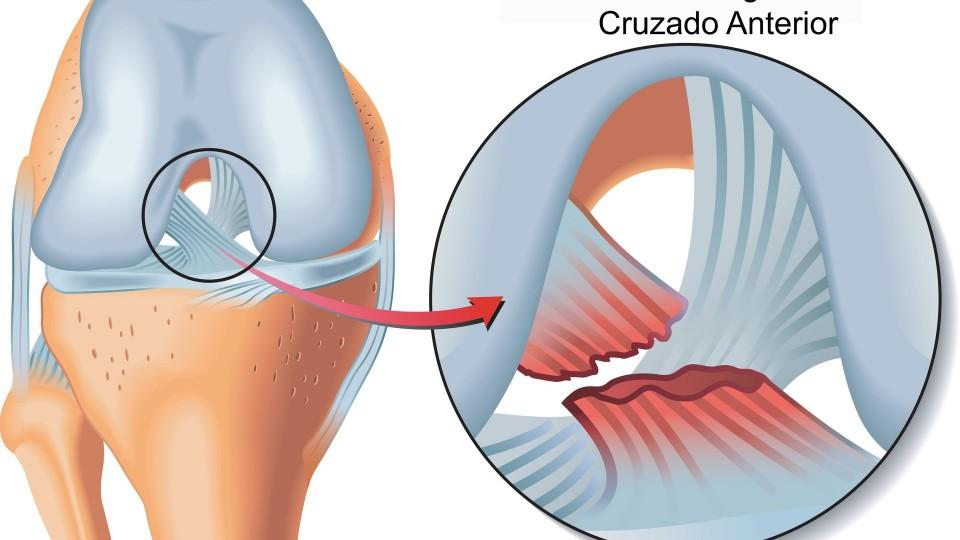 Dr. Emmanuel Díaz de León – Lesiones de Ligamentos en Rodillas – 29 de Diciembre 2015 #Salud