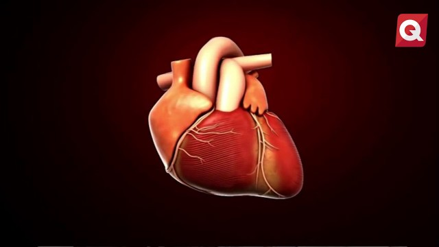 Jose Luis Leyva – Infarto al miocardio – 25 Julio 2017 – #SALUD