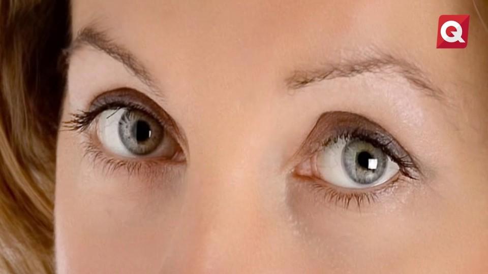 Leticia Márquez – Uso de cirugía laser para los ojos – 12 septiembre 2017 #SALUD