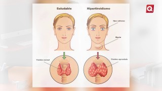 Endocrinología – Dra Karina Hernández Rodríguez – 08 Mayo 2018 – #SALUD