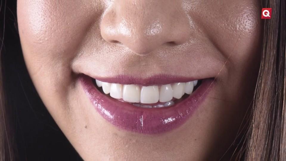 Odontología Laser – 5 Marzo 2019 – #BELLEZA