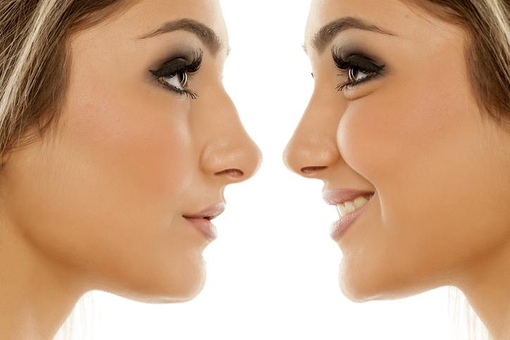 ¿Puede el ácido hialurónico corregir la forma de la nariz?