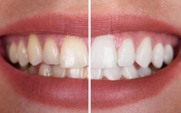Aprende a blanquear tus dientes con papel aluminio